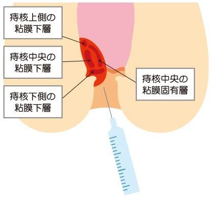 ジオン注射(ALTA療法)の効果について