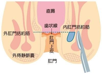 側方内括約筋切開術(LSIS)