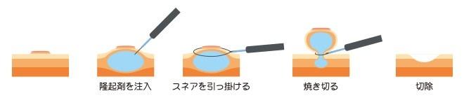 EMR(内視鏡的粘膜切除術)