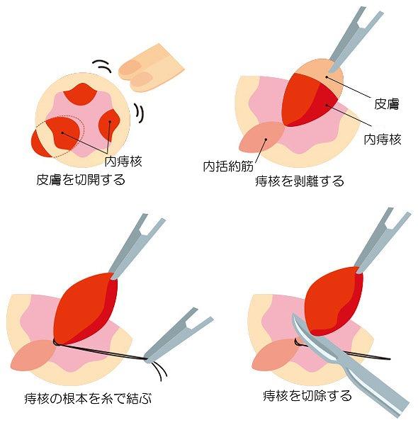 痔核結紮術